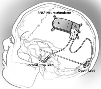 Implanted-RNS-Neurostimulator-and-NeuroPaceSketch